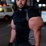 A világ legnagyobb bicepsze? Most lehet hányni!