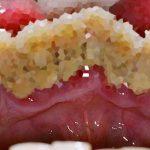 A fogkő kialakulásának oka, és kezelése