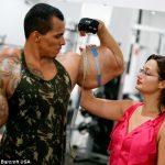 Óriási karokat akart – majdnem belehalt